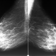 Mammogram films of both breasts of a female patient